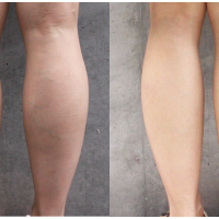 before-the-calf-of-botox-and-day21-4-200x200 - image